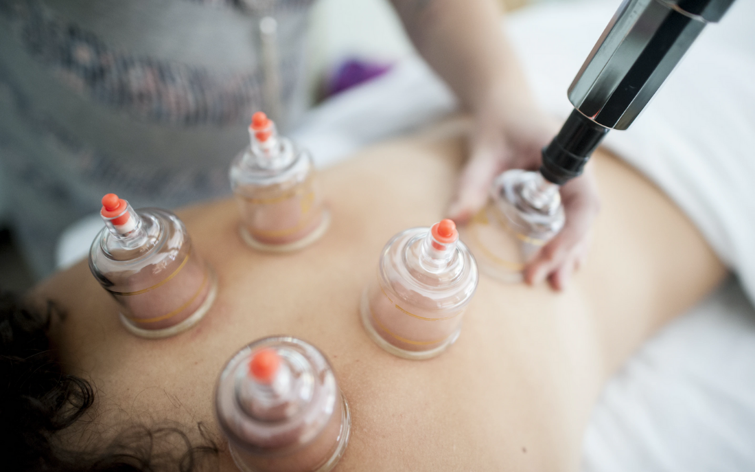 woman getting a professional cupping acupunture treatment